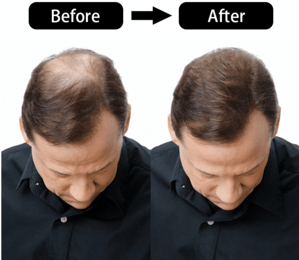 Champu crecimiento cabello crecepelo. Fortalece el cabello nutriéndolo